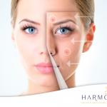 Descubre 6 razones por las que tienes acné