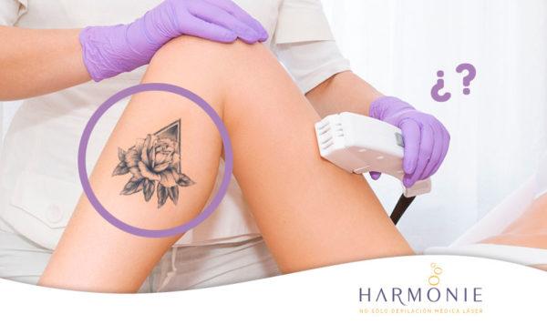 depilación láser y tatuajes